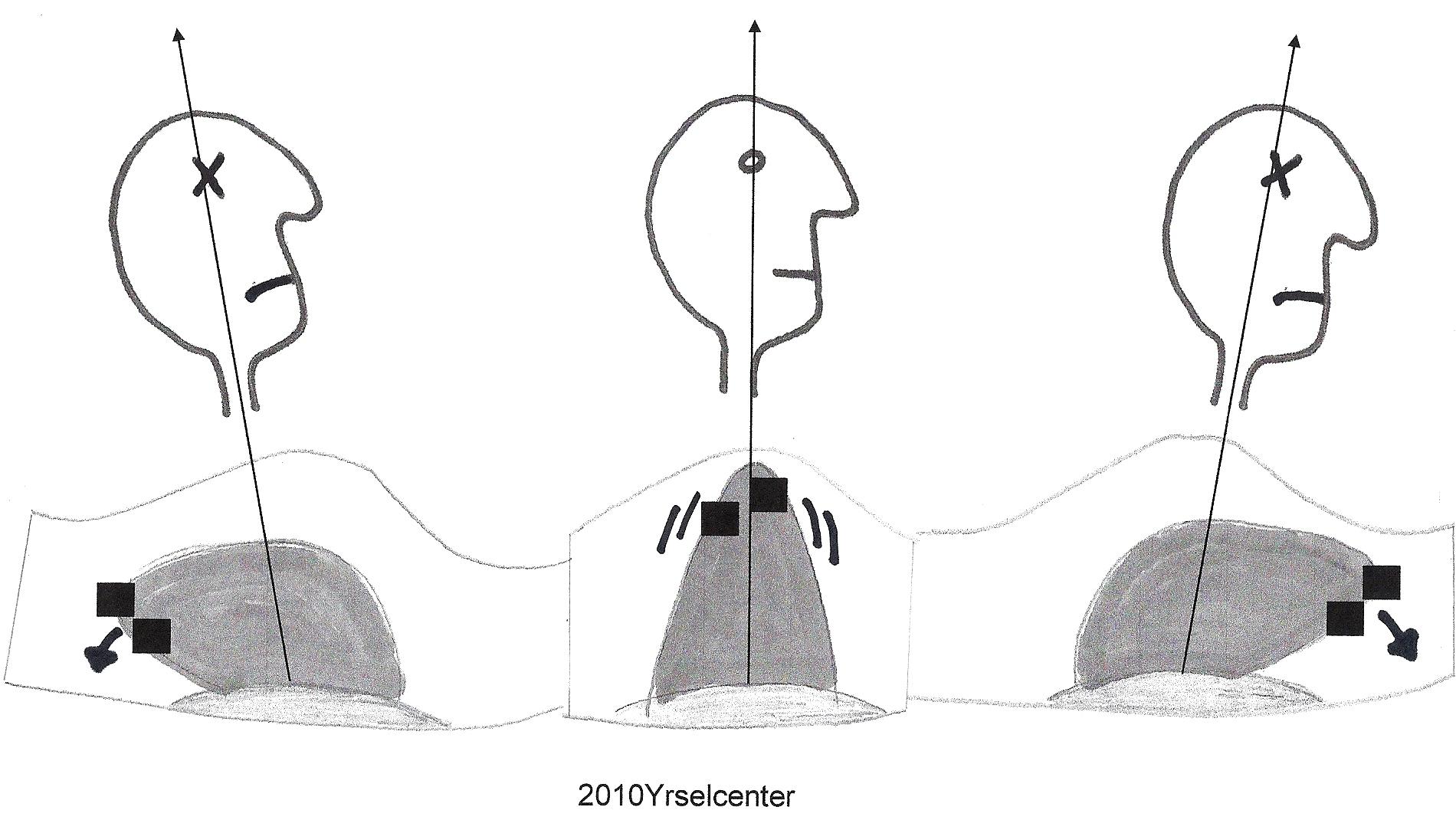 ofrivilliga rörelser med huvudet