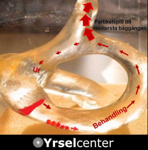 Kristallsjuka - behandlingskomplikationer