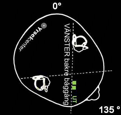 Epleys manöver position 3 mot kristallsjuka i vänster bakre båggång Yrselcenter