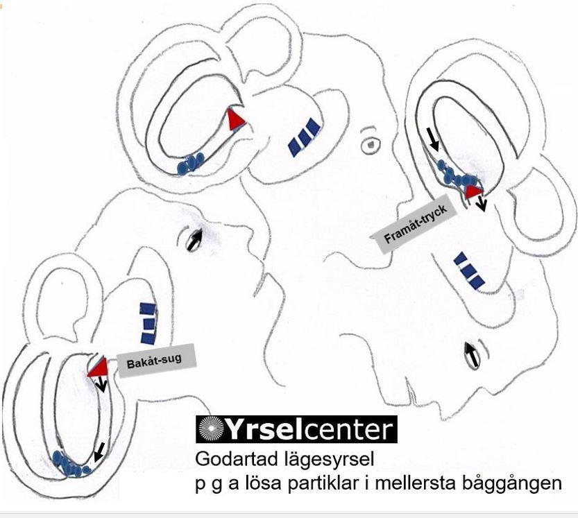 Godartad lägesyrsel Kristallsjuka p g a lösa partiklar i mellersta båggången