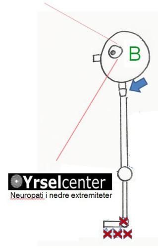 Neuropati i nedre extremitet