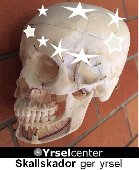 Yrsel av skallskador