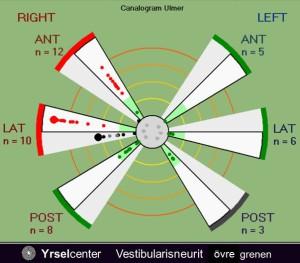 VHIT Vestibularisneurit typ 1