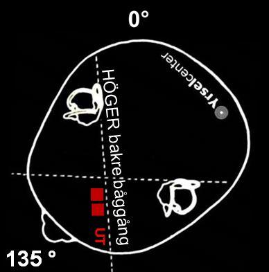 Epleys manöver mot lösa kristaller i höger bakre båggång
