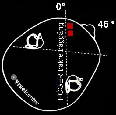 Behandling av lösa partiklar i höger bakre båggång position 1 Yrselcenter