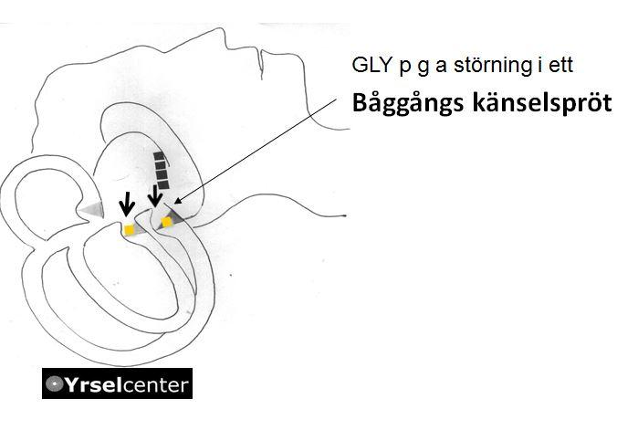 Godartad lägesyrsel p g a störning av känselsprötet cupulan