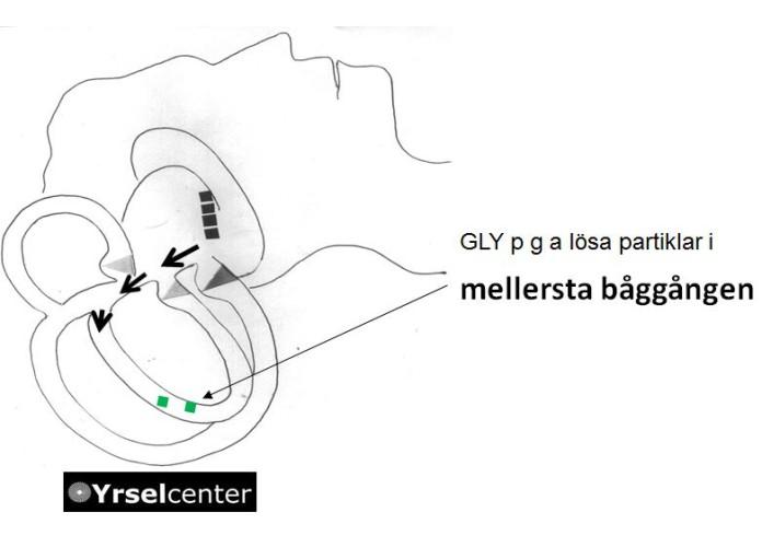 GLY_mellersta_baggangen_Yrselcenter