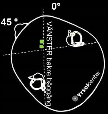 Position 1 i Epleys manöver mot lösa partiklar i vänster bakre båggång Kristallsjukan Yrselcenter
