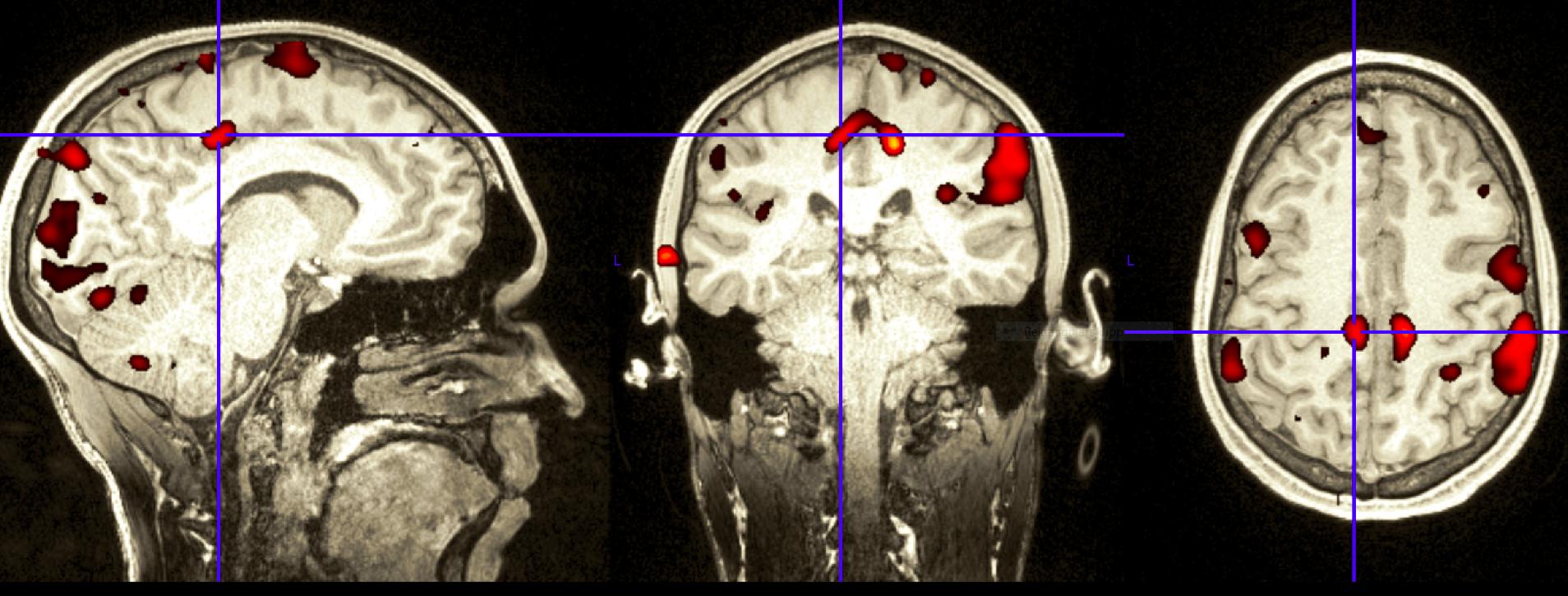 Experimentell aktivering av balansbanor under samtidig MR av hjärnan
