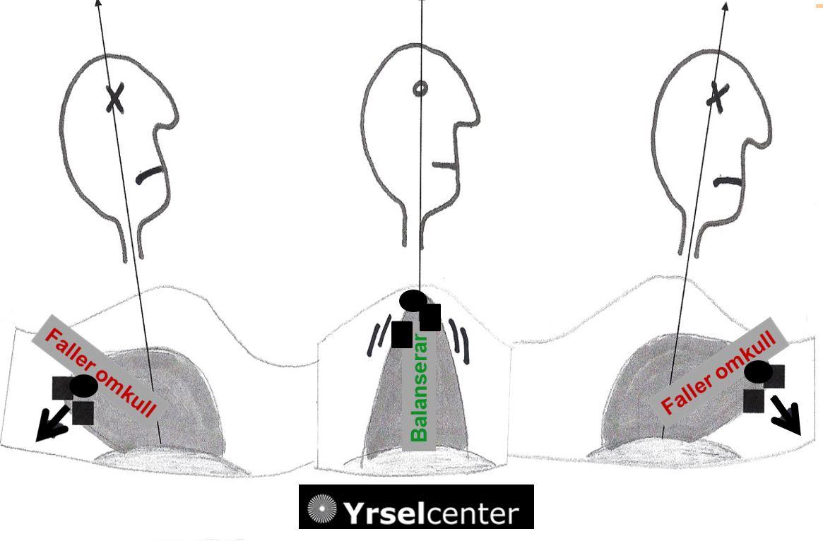 Cupulolithiasis Yrselcenter