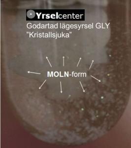 Kristallsjuka har en särskild tidsdynamik