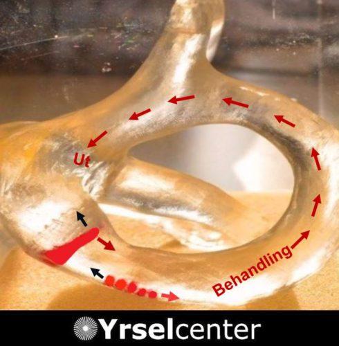 Kristallsjuka - behandling