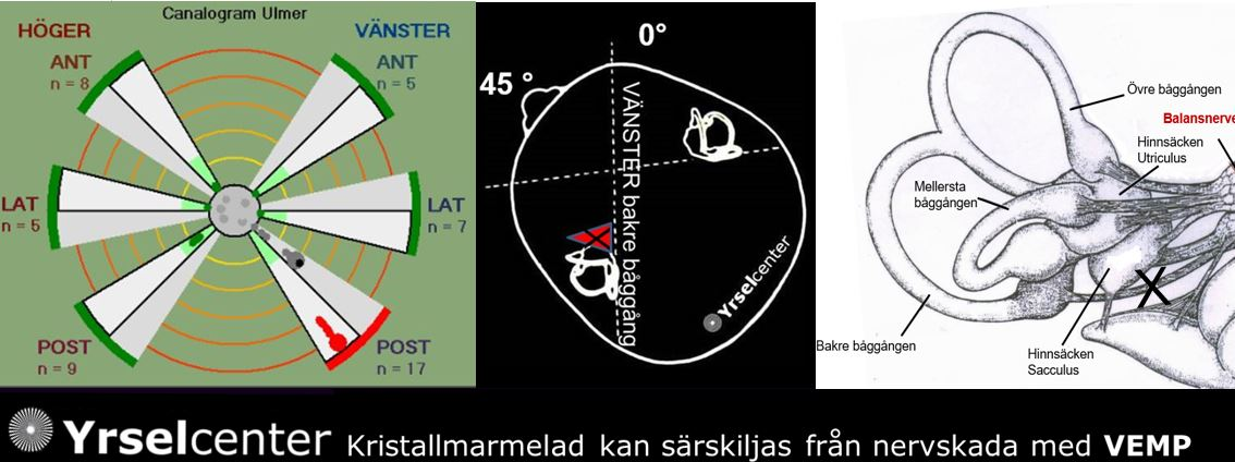 Kristallsjuka p g a kristallmarmelad