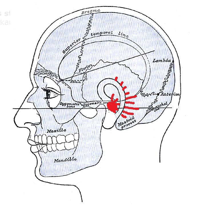 Mastoidit - komplicerad öroninflamation ger yrsel