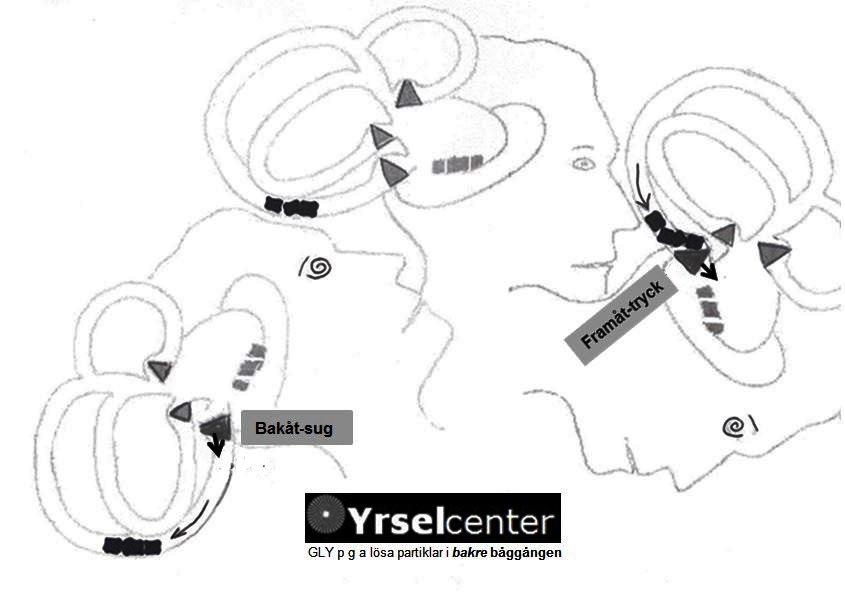 Mekanismer_BPPVP_Yrselcenter