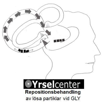Repositionsbehandling_av_Godartad_lagesyrsel_3_Yrselcenter