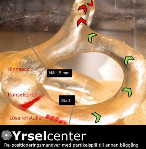 Kristallsjuka behandlingskomplikationer