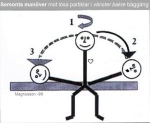 Semonts manöver mot kristallsjuka p g a partiklar i bakre båggången vänster Yrselcenter