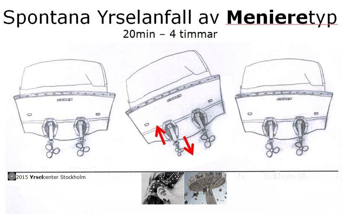 Spontana_yrselattacker_Menieressjukdom_Yrselcenter