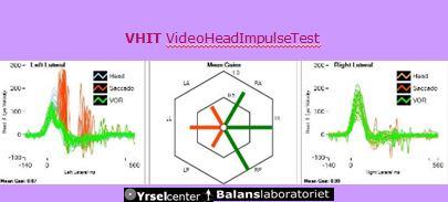 VHIT Videoheadimpulsetest -exempel på modern yrselutredning